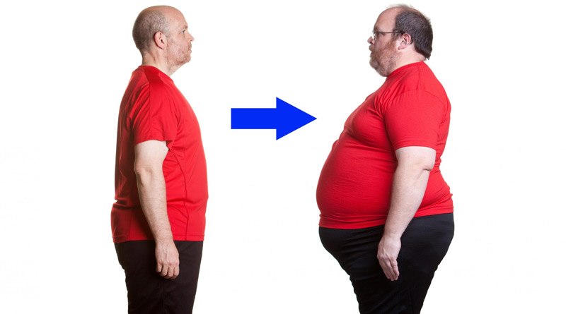 a person with obesity